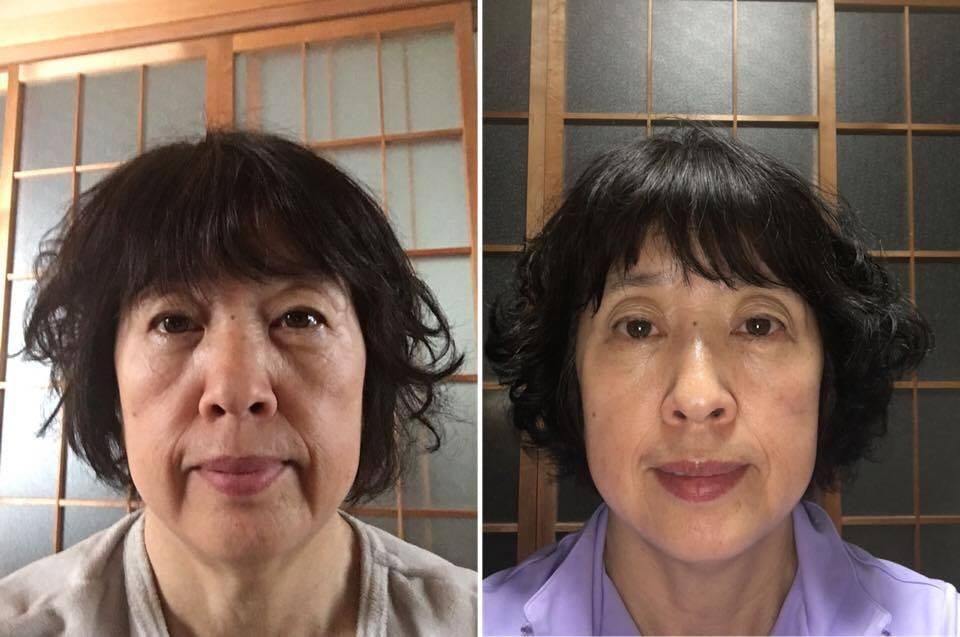 オルゴン療法での施術前と施術後